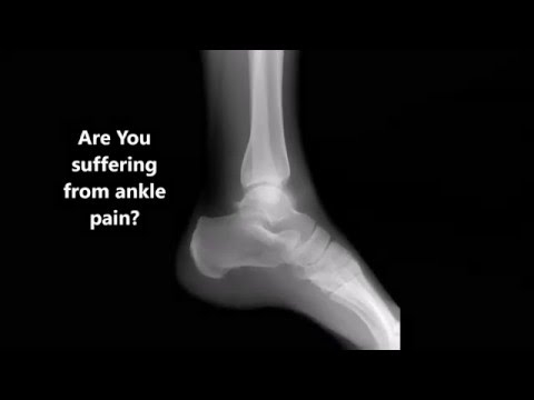 3D Dynamic Footscanner At Willaston Physio And Sports Rehab
