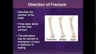 Radiology of Extremity Fractures (2003)
