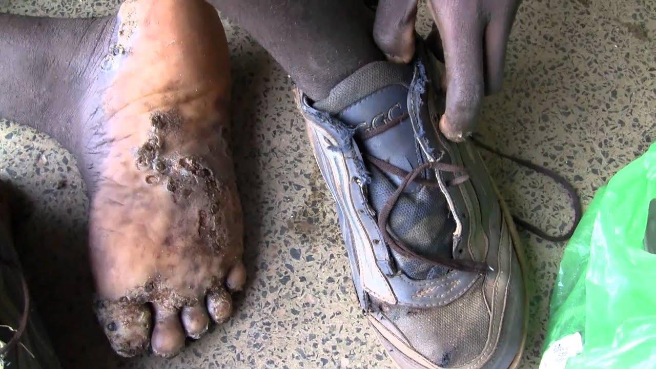 Diseases of the foot - Wikipedia