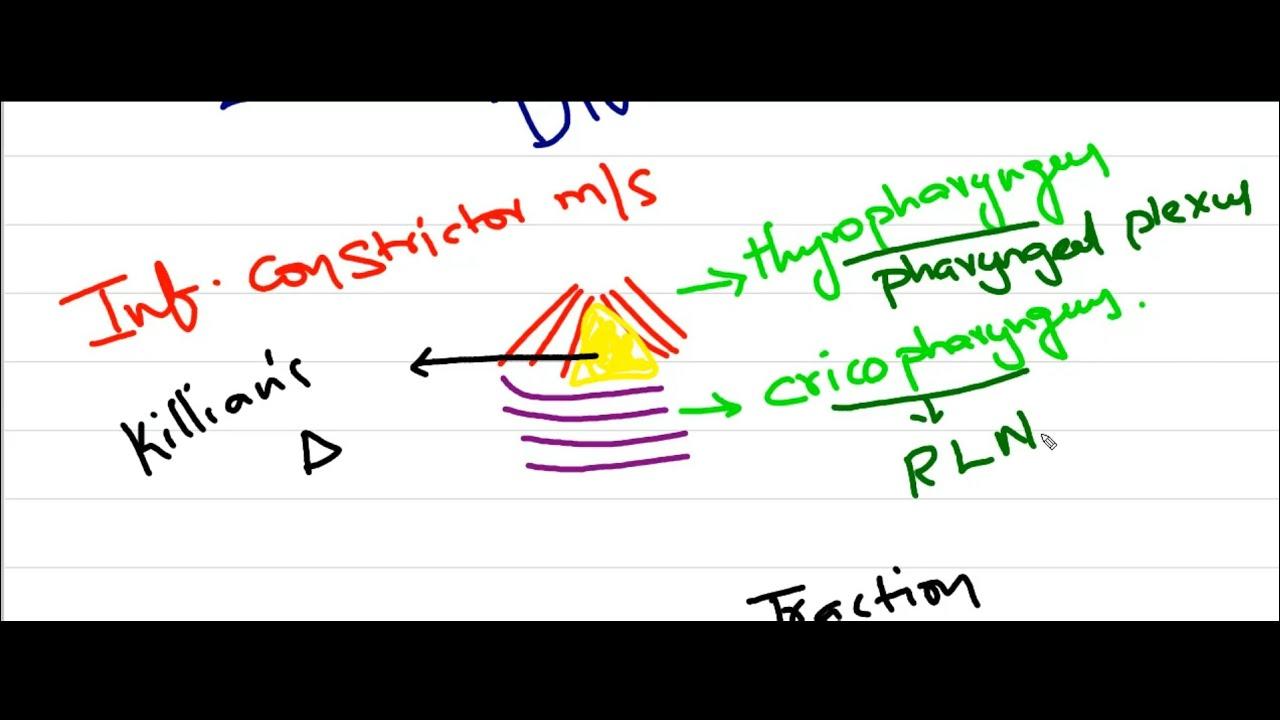 small resolution of zenker s diverticulum