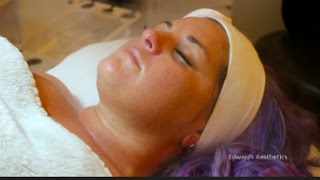 Baixar Edwards Aesthetics | Her First Facial | Image Skincare |