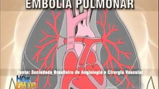 Enfermeira rn registrada pulmonar embolia