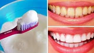 teeth whitening at home in 2 minutes / how to naturally whiten your yellow teeth #Shaluhubs