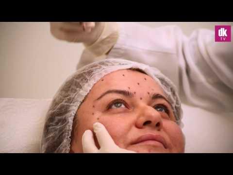 Botoks Uygulaması Antalya - DK Klinik