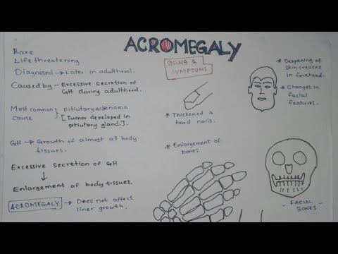 ACROMEGALY : Pathophysiology, Causes, Signs And Symptoms, Treatment And Everything.