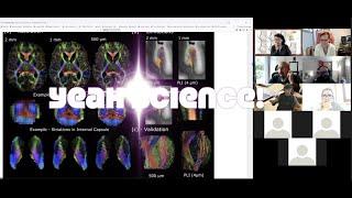 Neuroccino 28th June 2021– The Digital Brain Bank: an open access platform for post-mortem datasets