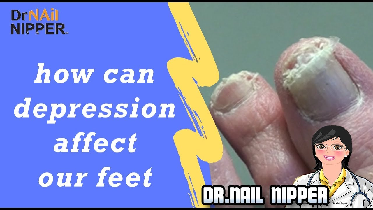 a bokaízület deformáló artrózisa fut