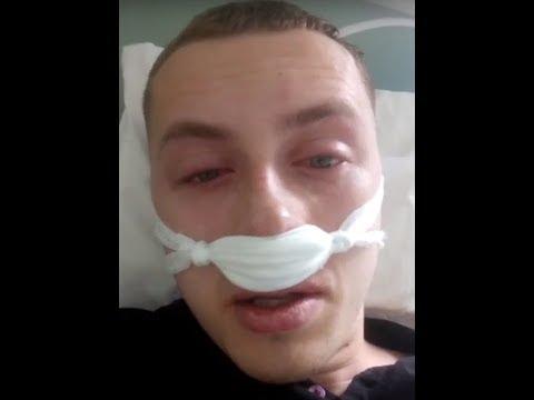 Искривленная носовая перегородка. Отзыв спустя месяц после операции.