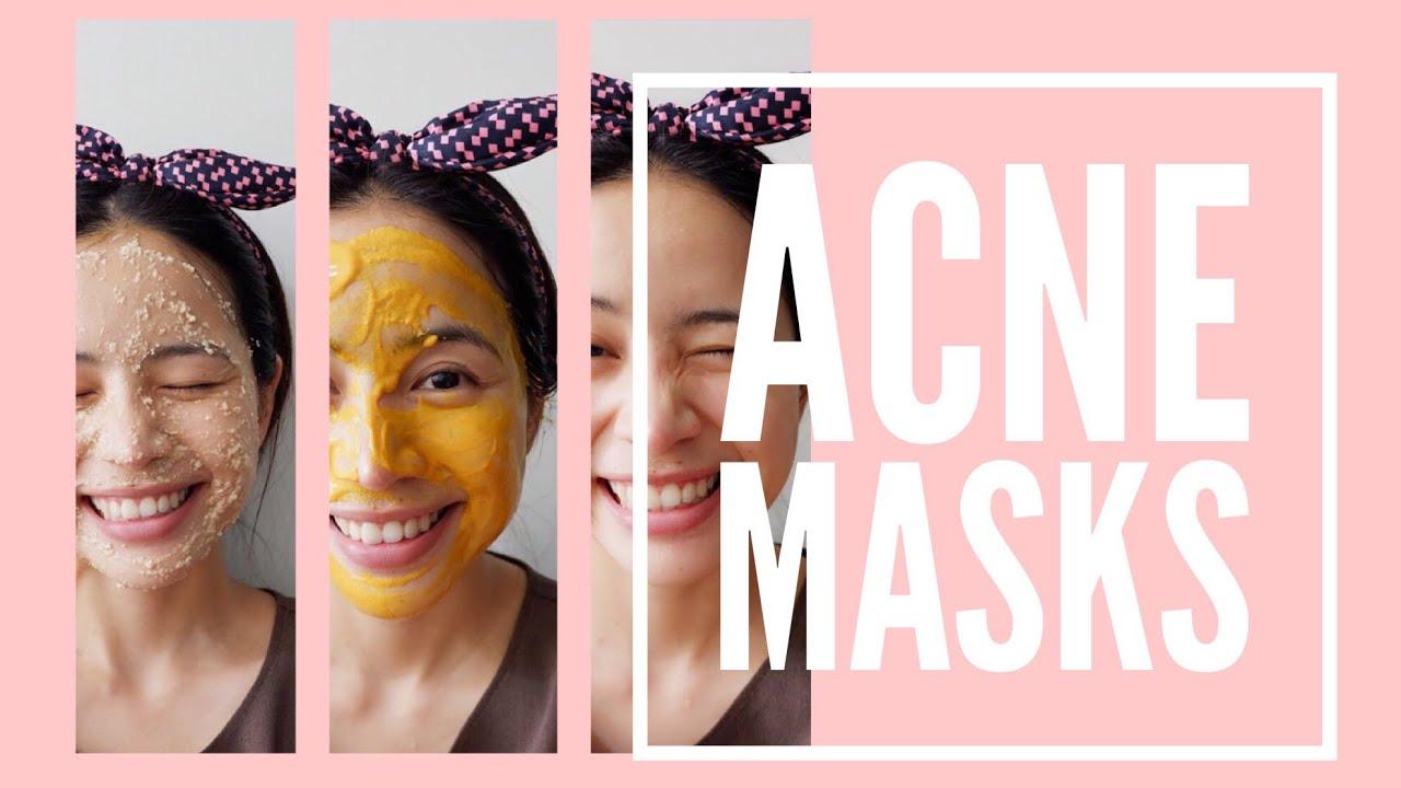 DIY Skincare แจกสูตรมาสก์หน้ารักษาสิวอักเสบ สิวอุดตัน 3 สูตร Acne facial mask 3 ways  ll Chatsshare