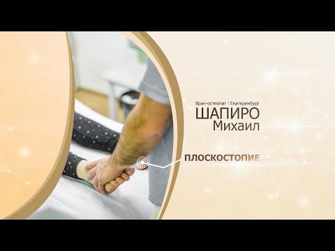 Плоскостопие причины и степени плоскостопия  Упражнения для лечения