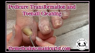 Pedicure Transformation Tutorial Deepest Ingrown Toenail or Pincer Toenail