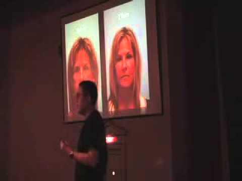 Fat Grafting Understood through a Hair Transplant Model, St. Louis, MO, November 19, 2010