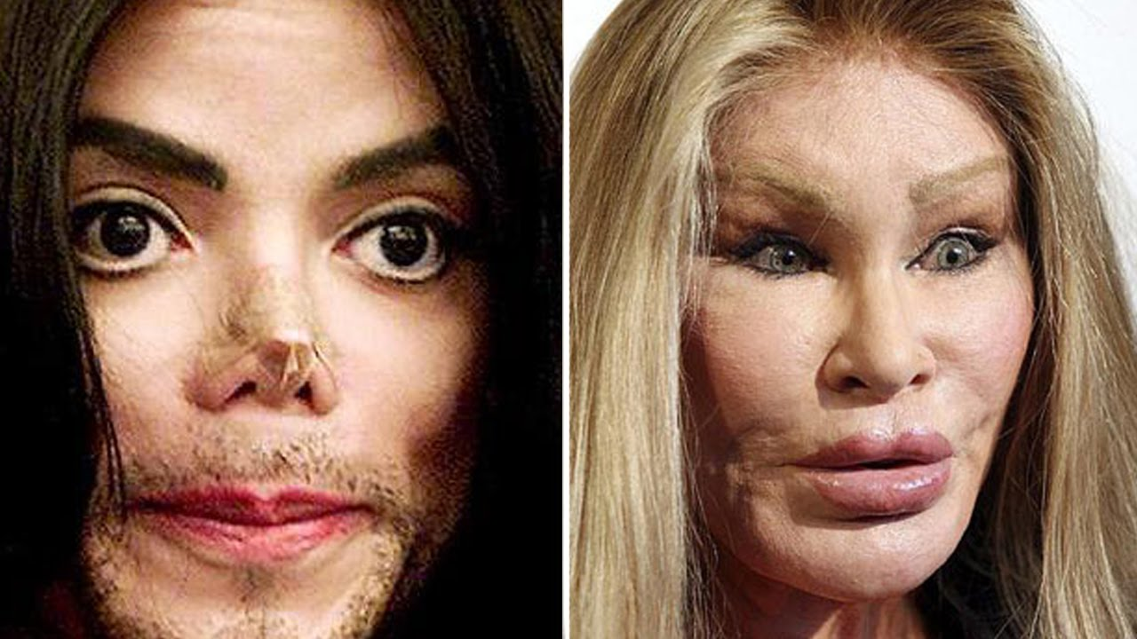 top 5 celebrity plastic surgery disasters - youtube