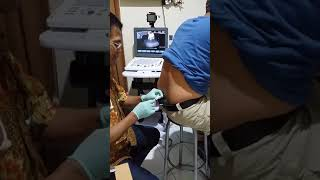 7 Tahun Berbaring Karena HNP / Syaraf Kejepit / Saraf Terjepit bisa Diatasi Dengan Endoscopy.