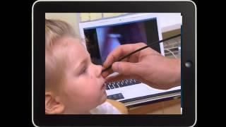 видео Аденоиды у взрослых и детей; их симптомы и лечение