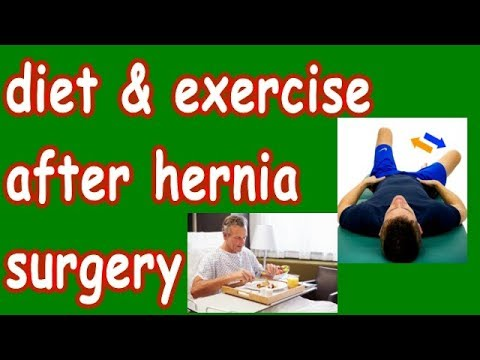 diet & exercise after hernia surgery | important precautions 4 good