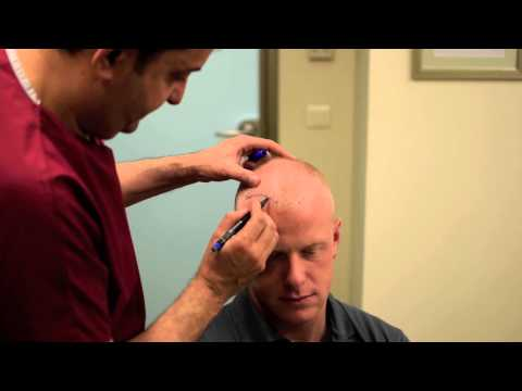 FUE Hair Transplant in Turkey - Watch Daniel' s Experience