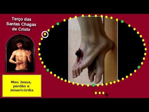 Terço das Santas Chagas de Cristo