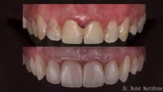 видео Доктора Зайцева. Болит зуб под коронкой, снимать ли её?