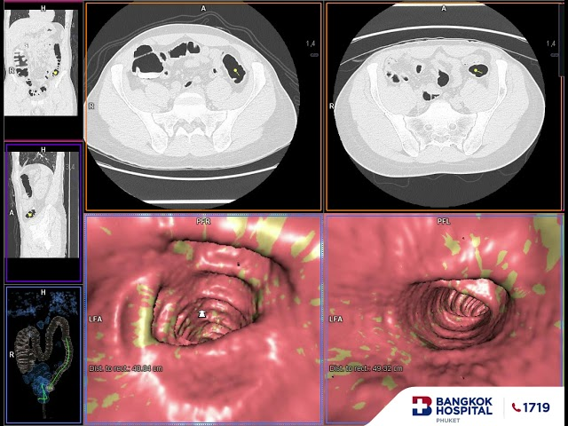 What CT Colonography (Virtual Colonoscopy) Looks Like?