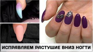Коррекция ГЕЛЕМ клюющего ногтя Как исправить КЛЮЮЩИЙ НОГТЬ КОРРЕКЦИЯ вниз растущего ногтя гелем
