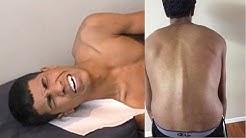 hqdefault - Back Pain Doctors Bartlett, Tn