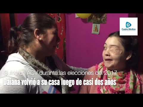 Florencio Varela: Daiana avanza con la recuperación junto a su familia luego del regreso a casa