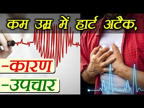 Heart attack at early age, causes and treatment | कम उम्र में हार्ट अटैक के कारण और उपचार | Boldsky