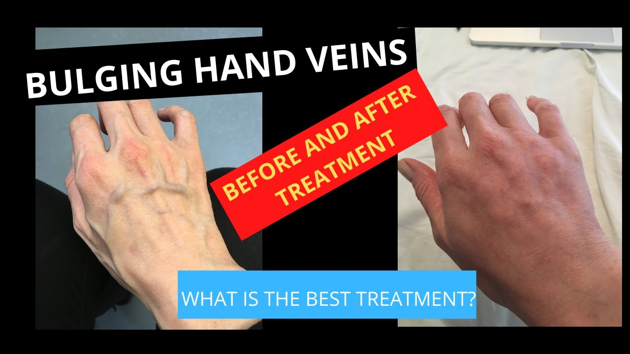 right hand veins