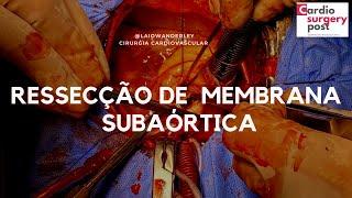 Cirurgia Narrada: ressecção de membrana subaórtica