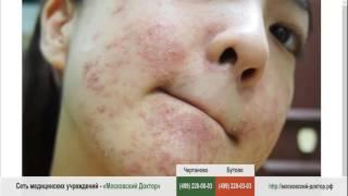 видео Аллергия на лице