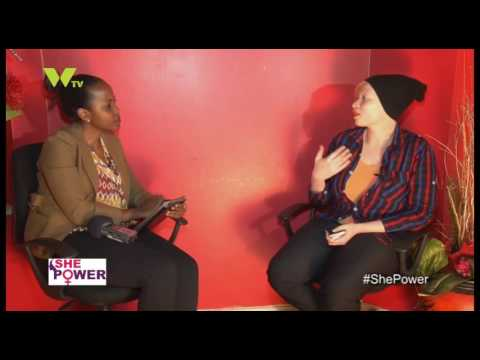 SHE POWER: Albinism