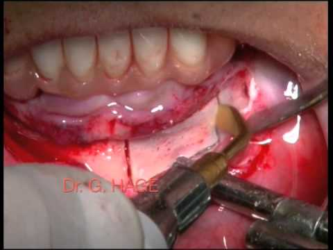 Georges HAGE: Onlay Bone Graft: The Chin Technique (SD quality, live transmission)