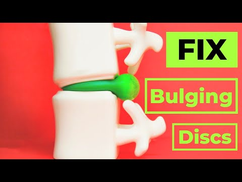 How to Fix A Bulging Disc -No surgery