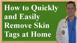 How to Quickly and Easily Remove Skin Tags at Home (Using Things You Already Own)