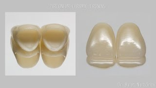 Коронки из диоксида циркония, ZIRCONIUM CERAMIC CROWNS(, 2016-04-13T03:27:20.000Z)