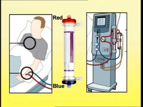 Setting Up Of Dialysis Machine