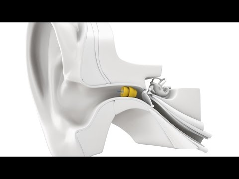 Why the Lyric Hearing Aid is the next new hearing aid device