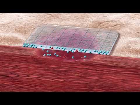 Как работает гидрогелевая повязка Гудротак Транспарент (HydroTac Transparent)