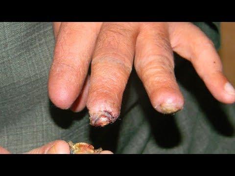 Gangrene Finger Amputation Treatment & Recovery?Bizarre Emergency Room