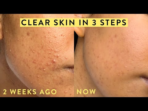 HOW TO IMPROVE SKIN TEXTURE IN 1-2 WEEKS - YouTube