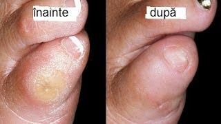 răni umede între degetele de la picioare