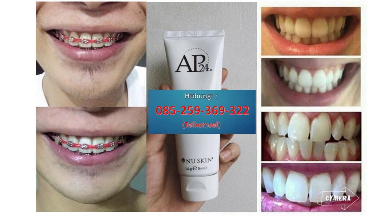 Hub 085 259 369 322 Telkomsel Bahan Pemutih Gigi Yang Alami