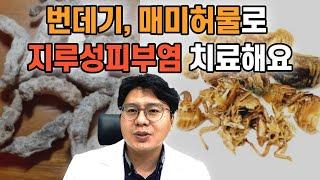 구미지루성피부염, 누에, 매미허물로 지루성피부염 치료해…