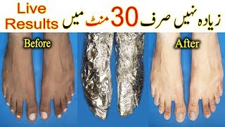 How to Whiten Feet in 25 Minutes - Foot Whitening With Simple Ingredients - Pedicure By Aisha Ali