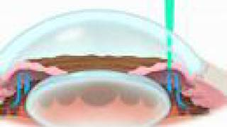Laser for Narrow Angle Glaucoma - Part 1 from The Eye Clinic of Florida