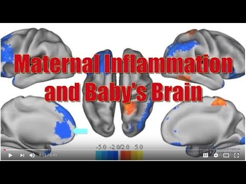 Ted Video 1602 How Childhood Trauma >> Maternal Inflammation And Baby S Brain Claudia Buss Ph D Youtube