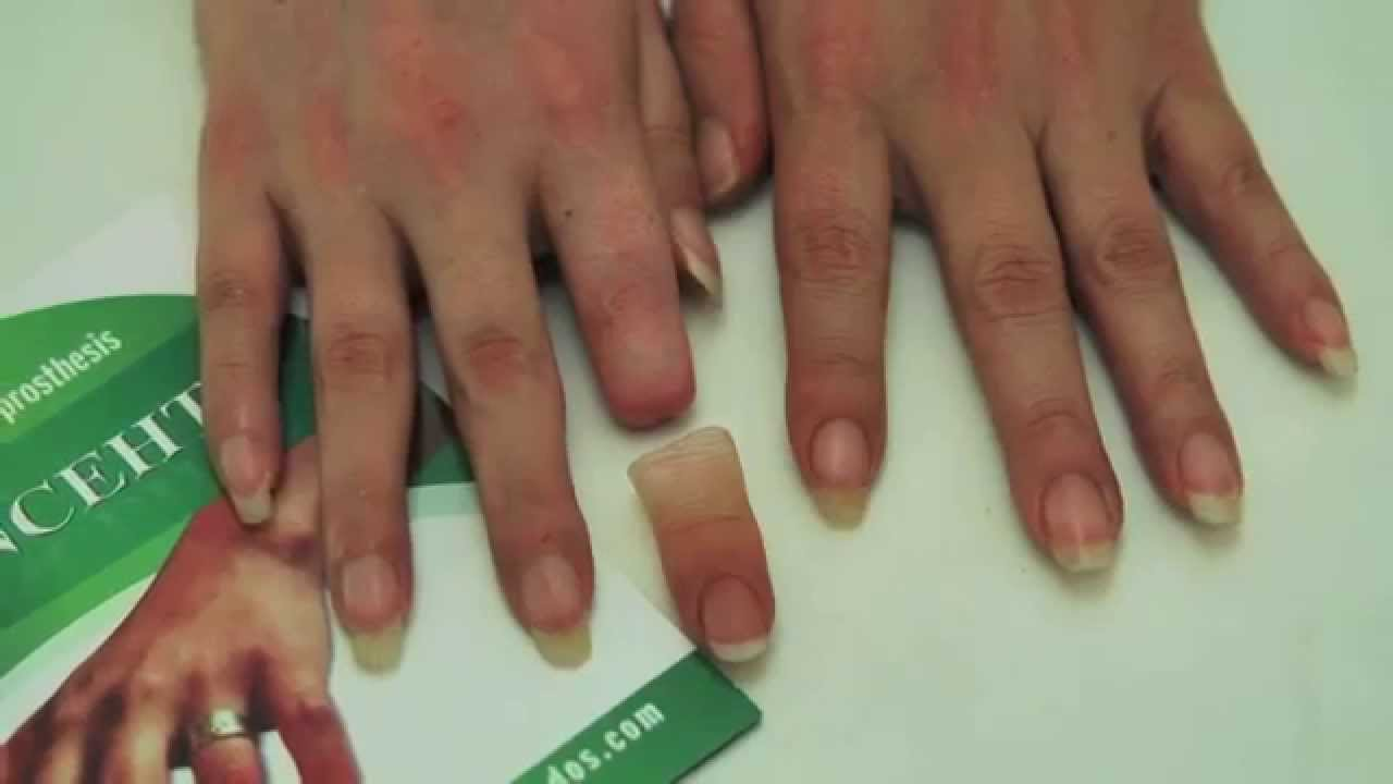 finger prothesis Prosthetic finger retention: a new approach  a ring may then be placed over the prosthesis onto the finger rendering additional retention as well as increased.