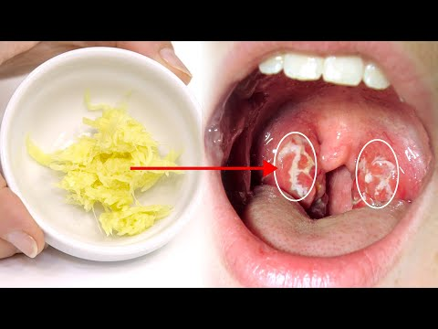 Say Goodbye To Throat Infection, Pain and Swelling | Health and Beauty