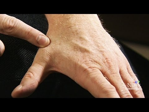 Vancouver man 'biohacks' hand with microchip